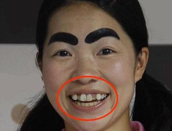 イモト デヴィ夫人に「バケモノ!」と言われ歯並びを治す